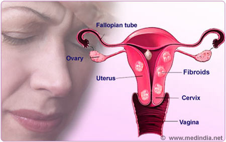 image of woman with fibroid pain